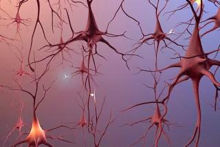 brain poor activity